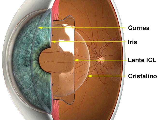 Cirugía Refractiva con ICL
