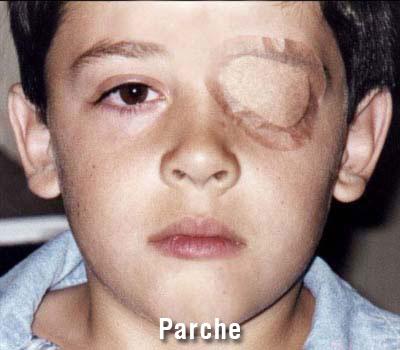 Nene pierde el ojo por imprudencia de jóvenes
